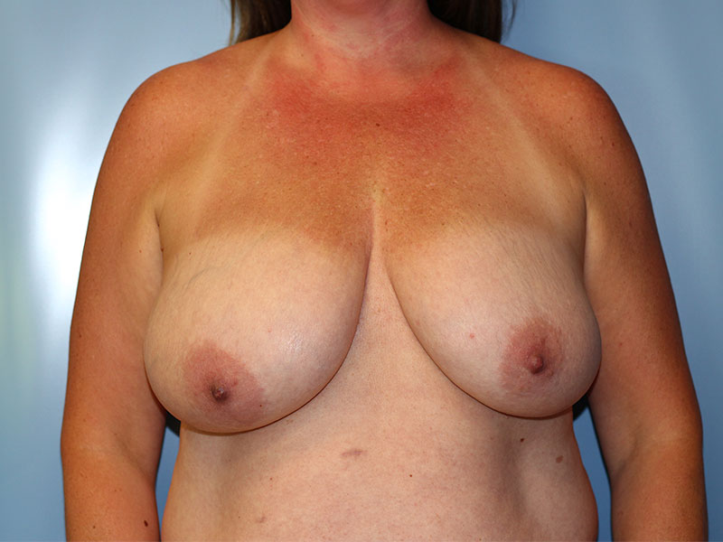 Breast Reduction Beverly Hills