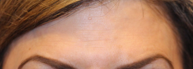 BOTOX For Migraines Beverly Hills