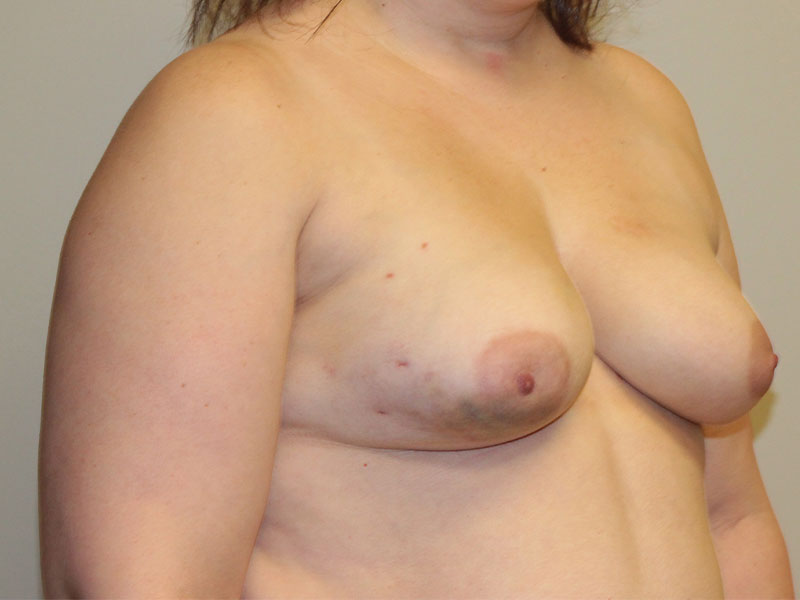 Breast Reconstruction Beverly Hills