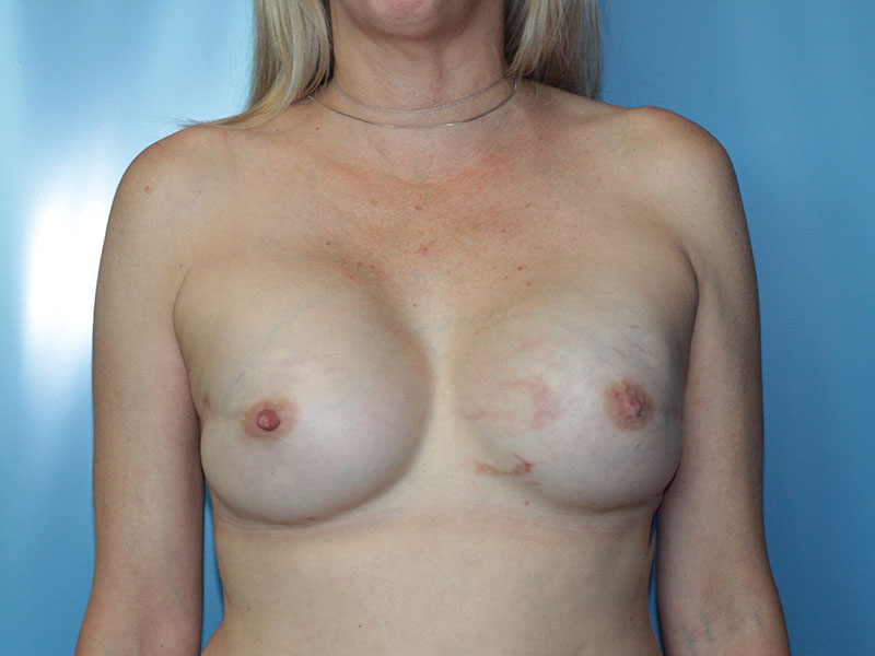 Breast Revision Beverly Hills