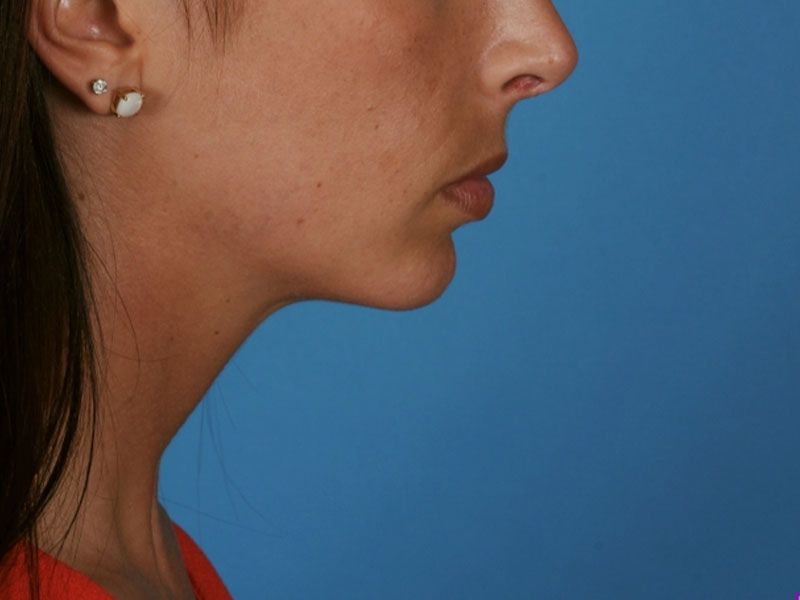 Chin Augmentation Beverly Hills | PERK Plastic Surgery
